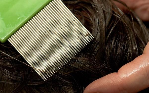 Как вычесать вшей и гнид в домашних условиях