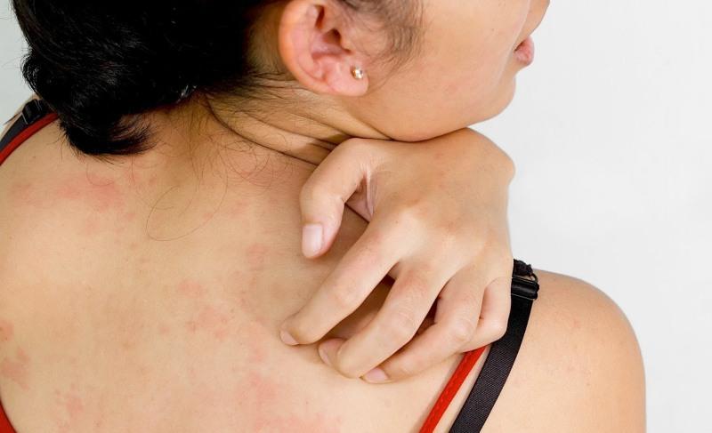 Переносят ли клопы гепатит