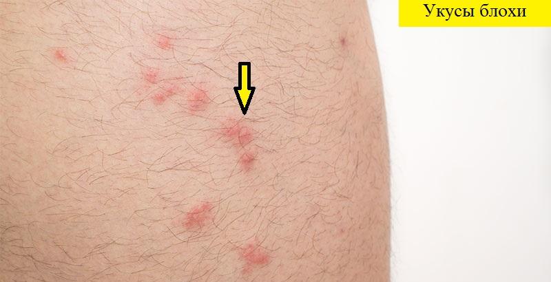 Аллергия у человека на укусы блох