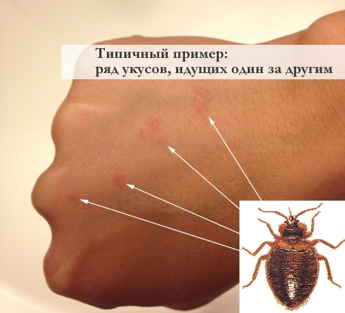 Чем отличается укус клопа от укус комара, какие могут быть последствия?