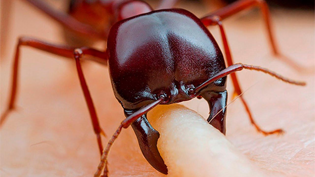 Укус муравья: как выглядит, симптомы, лечение