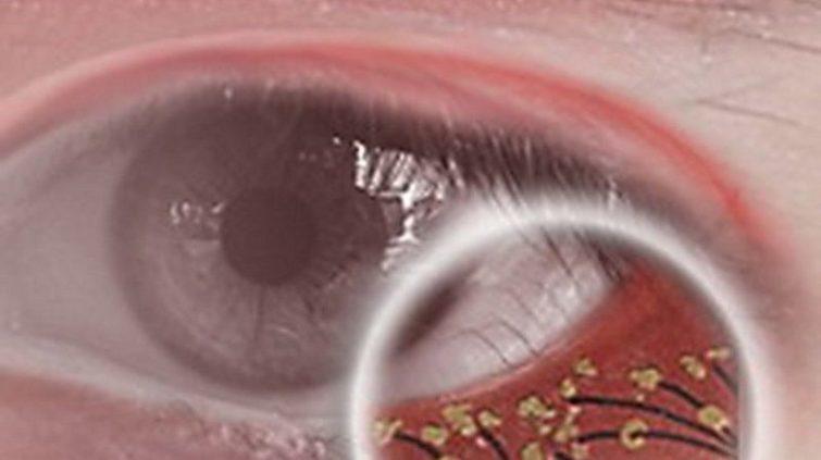 Как вылечить глазные клещи