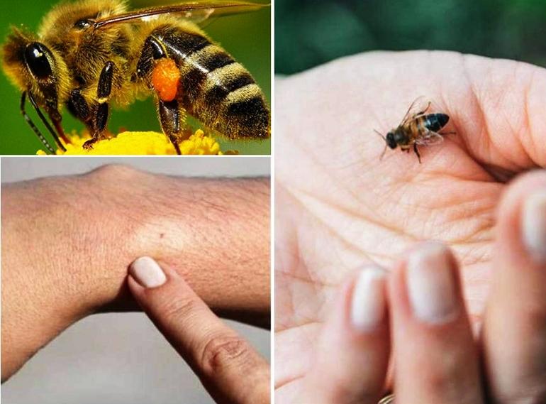 На фото укус пчелы: нанчалльная фаза и сильные отеки
