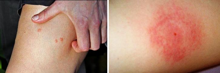 Больно и опасно: если укусила мошка – ТОП-5 средств спасения. Первая помощь и способы лечения