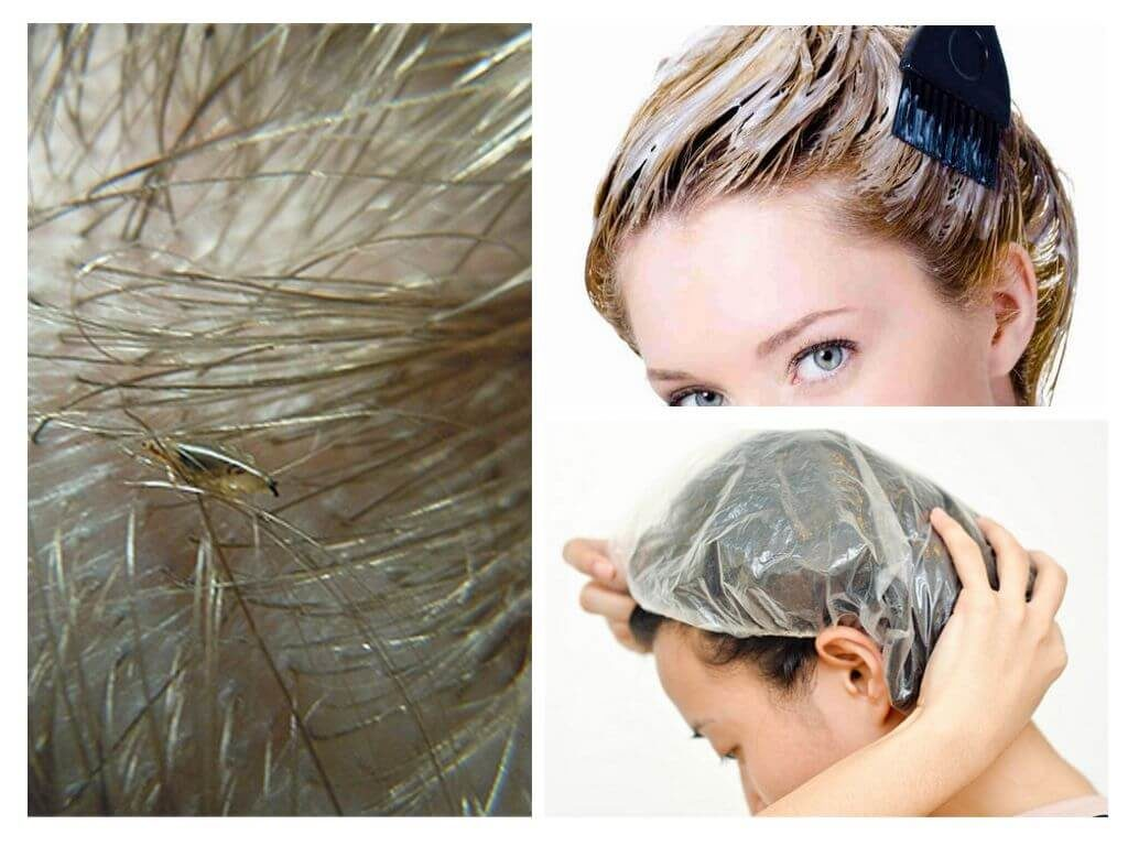 Убьет ли краска для волос вшей и гнид на голове?
